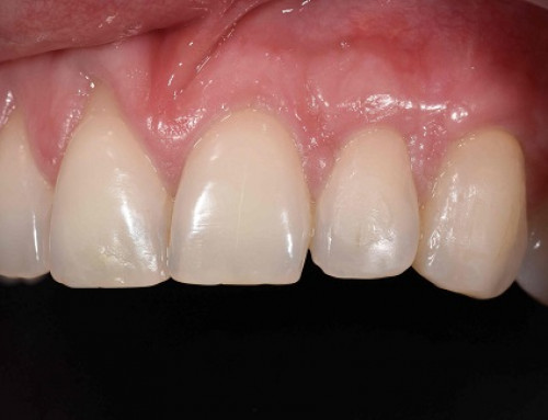 Causas de la retracción gingival y soluciones